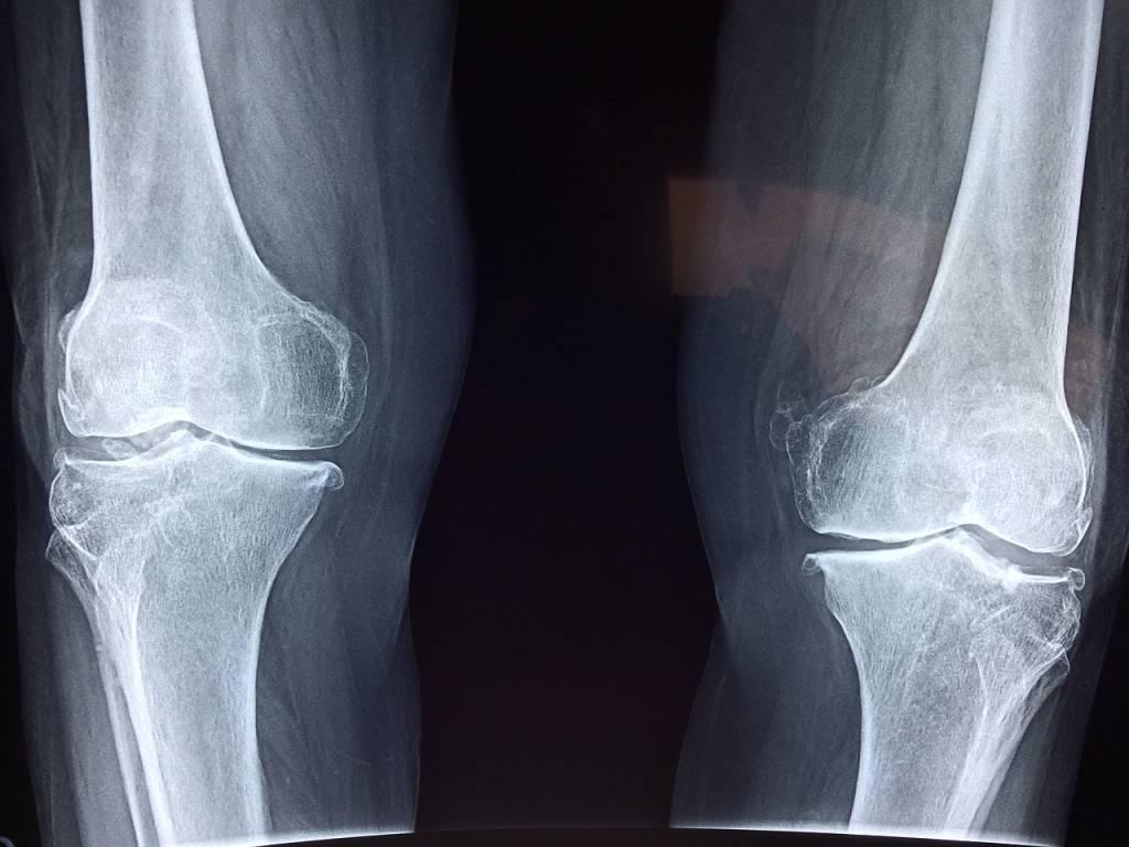 Остеопороза и колаген